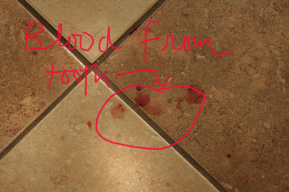 tooth blood